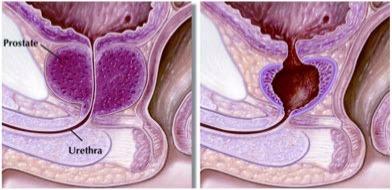 Holmium Laser Enucleation Prostatectomy