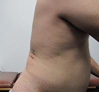 Minimally Invasive Stone Treatments