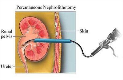 Percutaneous Nephrolithotomy (PCNL) Including Mini-PERC (mini PCNL)