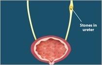 Ureteric Stones